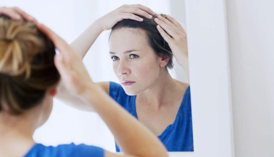女性薄毛対策①