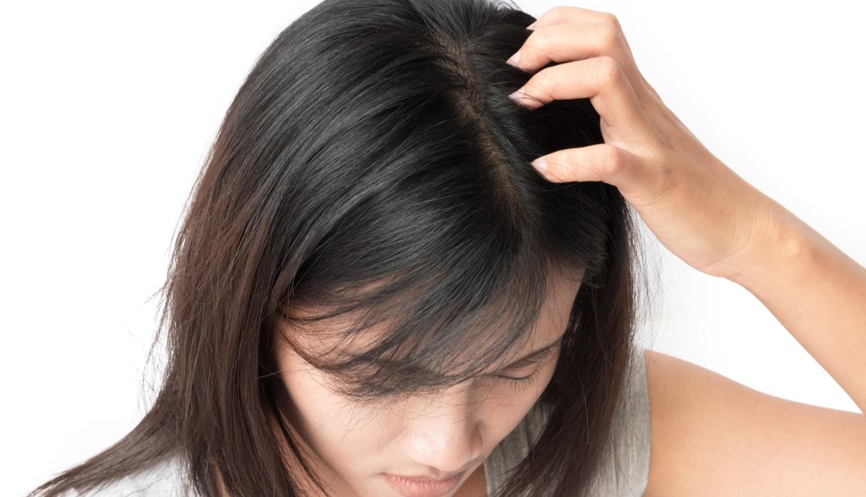 女性薄毛育毛剤頭皮