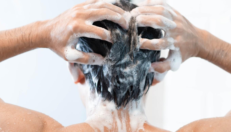 髪細い頭皮汚れ