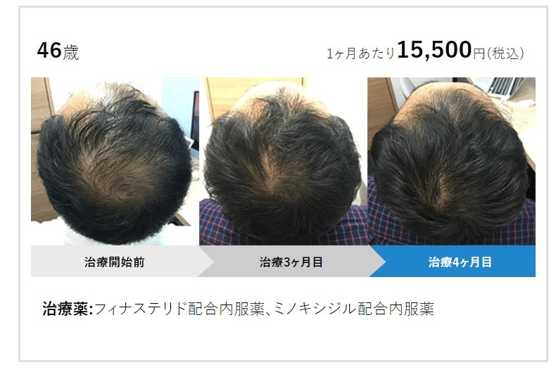 AGAヘアクリニック治療効果