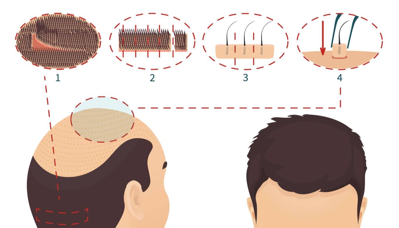 AGA治療自毛植毛