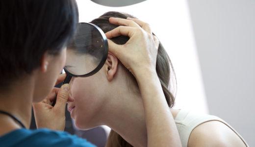 頭皮がポロポロ剥がれる原因は?今日からできる6つの対策も解説